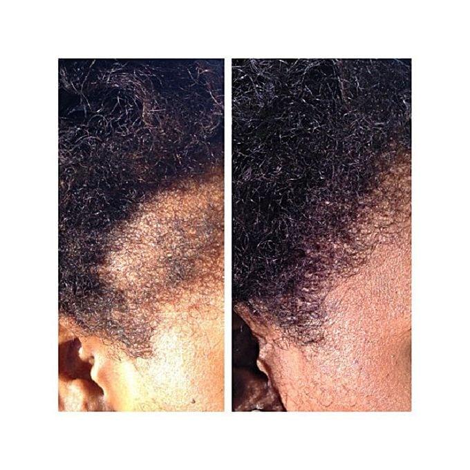 hairlinepro